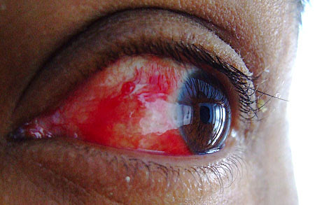 http://www.bzangygroink.co.uk/images/2005/eye.jpg