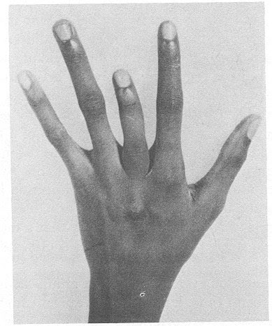 http://biology.kenyon.edu/slonc/gene-web/sickle_cell_project/shortened%20finger.jpg