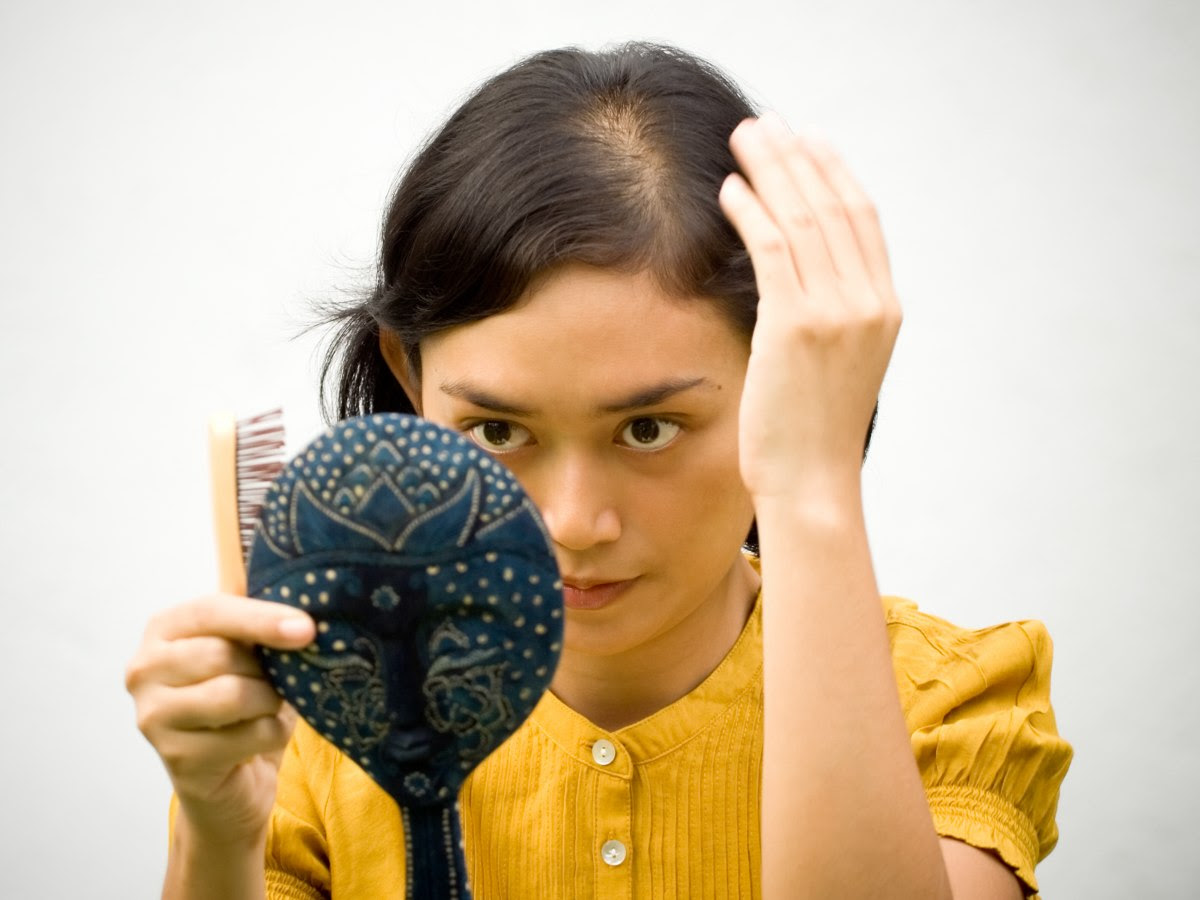 Hair loss solutions, how to prevent it and treatments for ...
