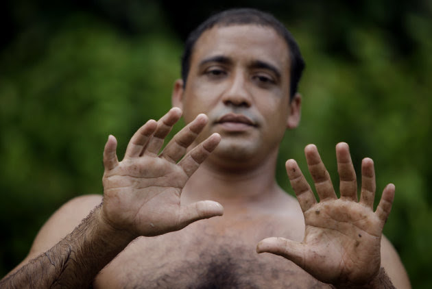 """In this photo taken Wednesday Aug. 24, 2011,  Yoandri Hernandez Garrido, 37, known as """"Twenty-Four"""" shows his 12 fingers in Baracoa, Guantanamo province, Cuba.  Hernandez is proud of his extra digits"""
