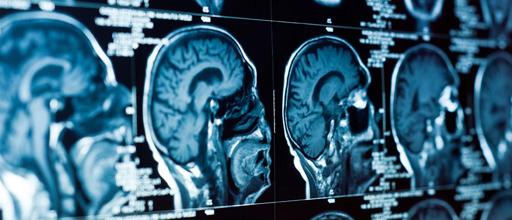 O cérebro ouve  Os efeitos da atuação do cérebro sobre outras partes do corpo são bastante óbvios.  Mas parece que esta é uma via de mão dupla.