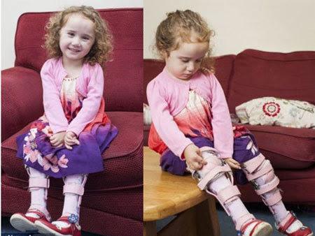 bé gái, chân ếch, bước đi, đầu tiên, chứng bệnh, hiếm gặp