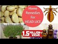 How To Get Rid Of Lice Naturally At Home