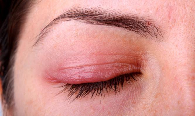 EyeHealthDisease_Blepharitis