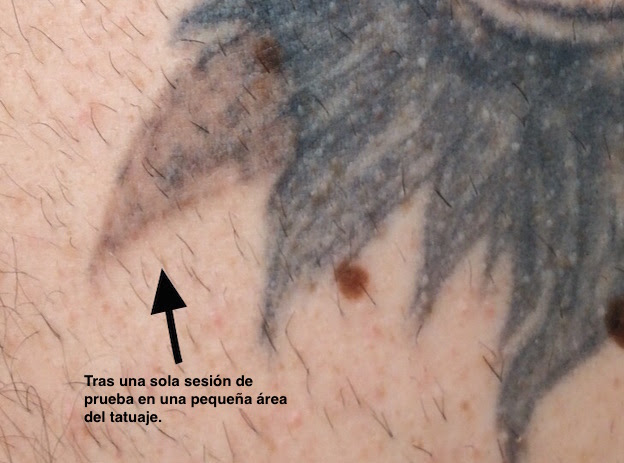 Remove Tattoos With Laser Epidermos Instituto De Dermoestética