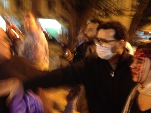 Mulher é ferida por bala de borracha durante protesto no Rio (Foto: Henrique Coelho/G1)