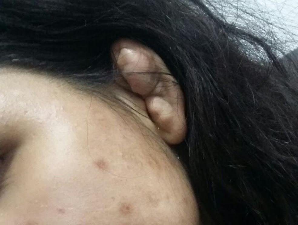 Denunciante afirmou à polícia que orelhas de jovem ficou deformada por causa de facada (Foto: Maiara Barbosa/G1)