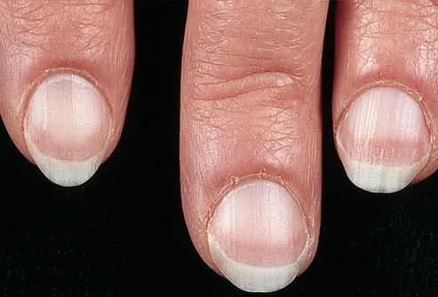 health and nails