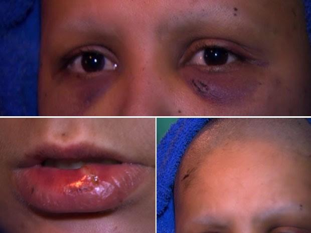 Jéssica dos Santos foi torturada e teve o cabelo raspado pelo marido em Guarulhos, na Grande São Paulo (Foto: Reprodução/TV Globo)