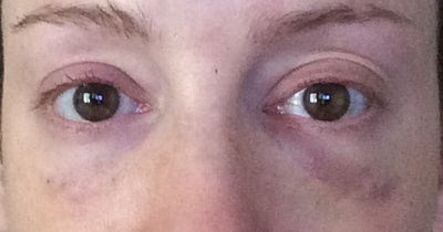 Purple Undereye Circles Since Childhood - Restylane review ...