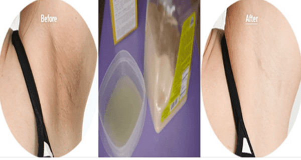 Get White Underarms In 3 Minutes | Womans Vibe