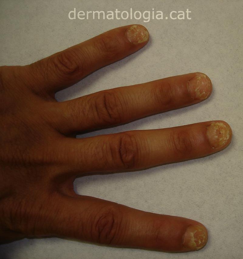 Dermatologiacat Onicomicosis