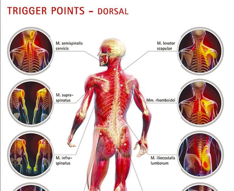 Family First Chiropractic and Wellness: Trigger Point Massage