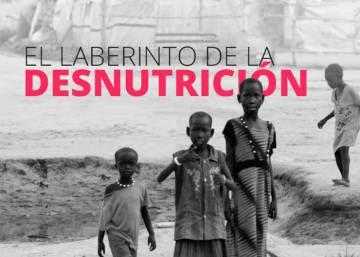 El laberinto de la desnutrición