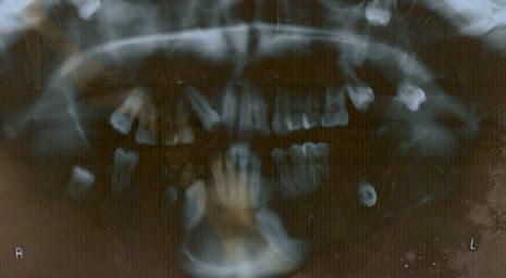 sindrome_Gorlin_caso/ortopantomografia_dentadura_clinico
