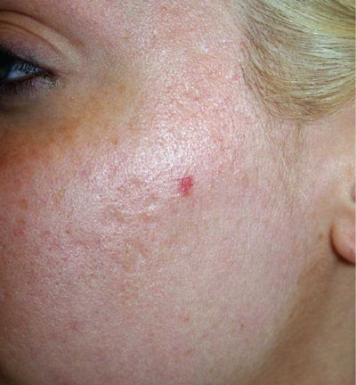 EMatrix IR or RE for Acne Scars and Discoloration of Skin ...