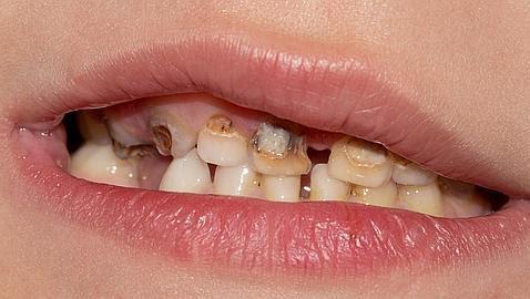 Consejos para cuidar los dientes y encías de los más pequeños