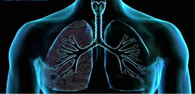 Here's How to Clean the Lungs in 3 Days!