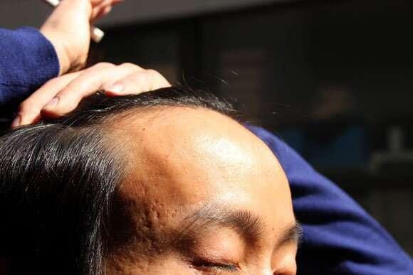 Empresa de cosméticos descobre cura para a calvície