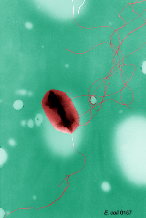 Escherichia coli O157:H7, cell with flagella, ...