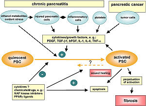 Pancreatic stellate cell activation in chronic...