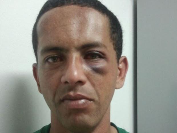 Homem diz ter sido agredido por pastor em Jacareí (Foto: Camilla Motta/G1)