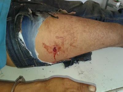 Bandido foi baleado na perna direita (Foto: Ubatã Notícias)
