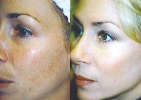 Lactic Acid Peel Peeling All About Cosmetology