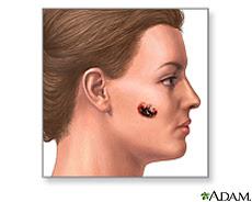 Ilustración de un melanoma maligno en el cachete