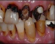 sharpening teeth MHRA