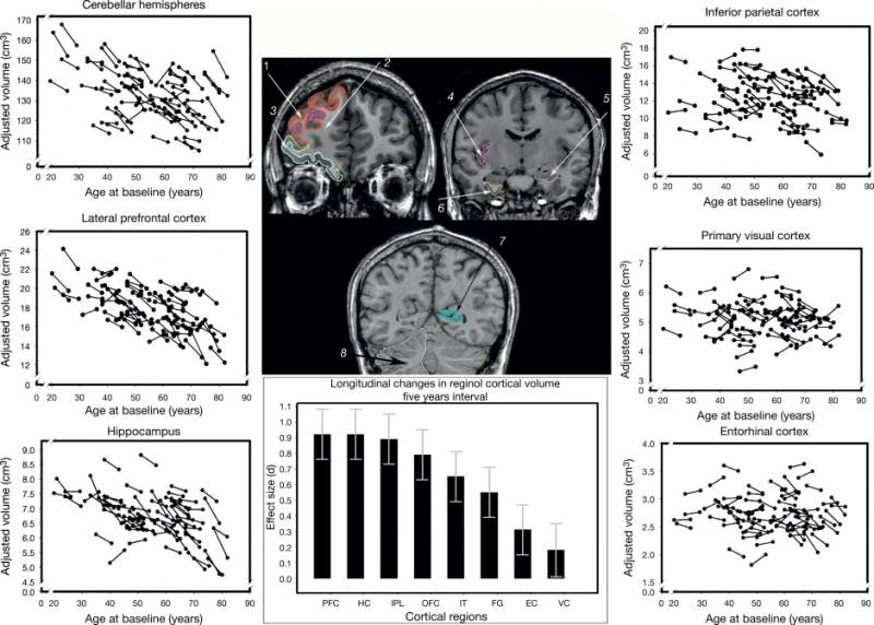 Neuroanatomy: Aging of the Brain Gray and White Matter