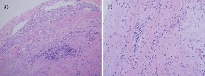 Mesothelial Cells In Pleural Fluid Tuberculosis