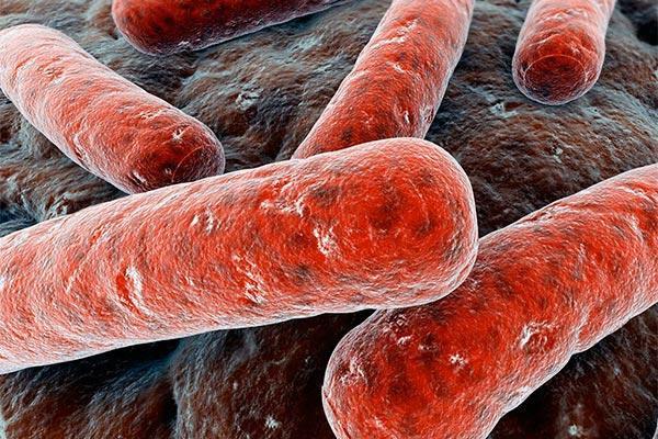 tuberculosis infecta