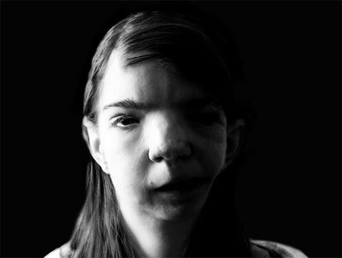 Penny Loker, chất độc da cam, dị tật bẩm sinh