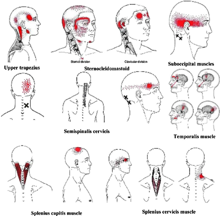 Tension Headaches - STACEY HARRIS - BODY THERAPEUTICS