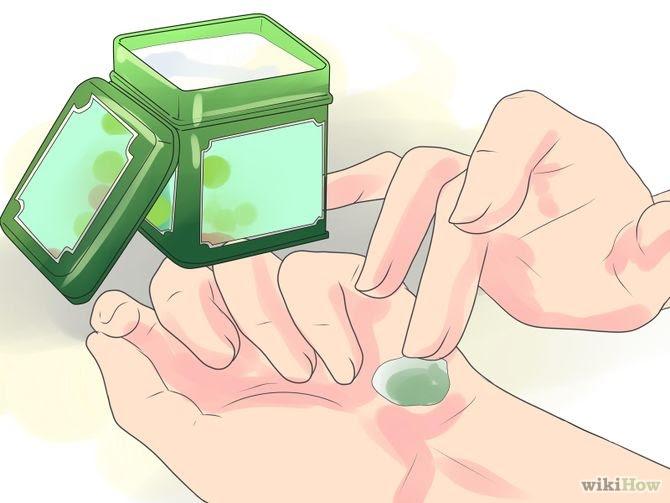 Heal Cracked Skin Step 9.jpg