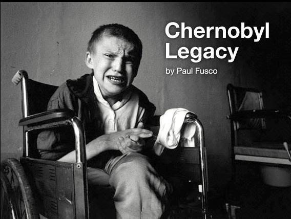 Resultado de imagem para nuclear child chernobyl