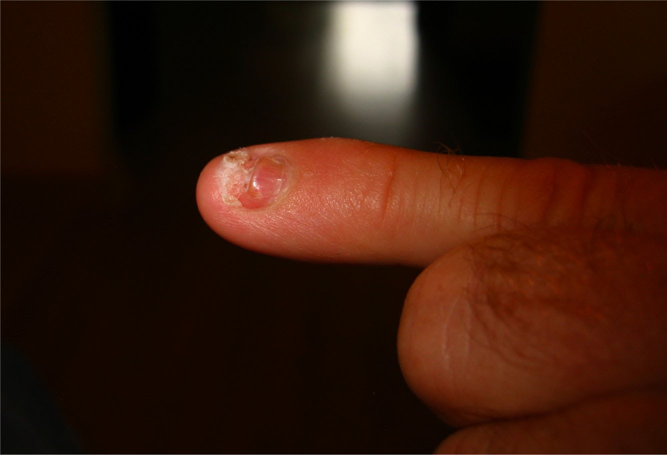 smashed finger's fingernail is growing back 20 days after coming off .... soul-amp.com