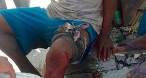 Ataca cocodrilo a campesino en la Costa