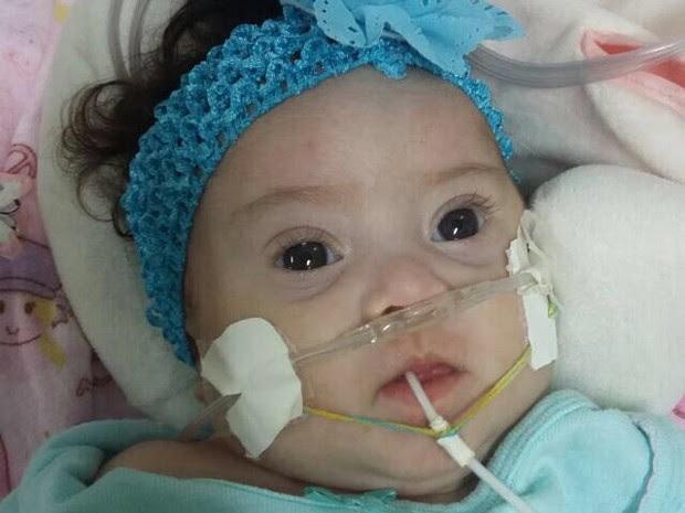A bebê Elisa Teixeira, que aguarda por cirurgia no coração (Foto: Érica Teixeira/Arquivo Pessoal)