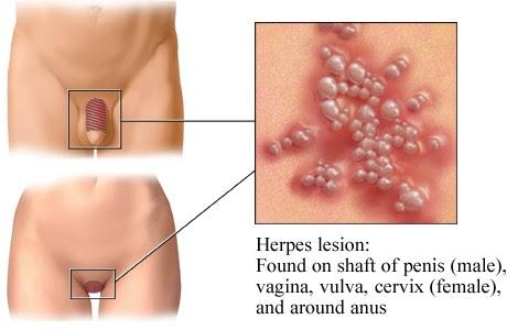 Pennis herpes på Signs of