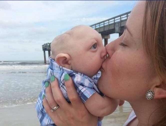 Bebê que nasceu sem parte do cérebro surpreende pais ao dizer suas primeiras palavras
