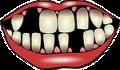 gum abscess_swollen gums