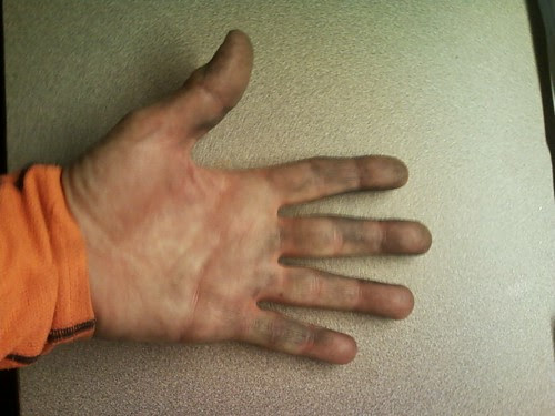 Dirty Hand After Fixing Flat