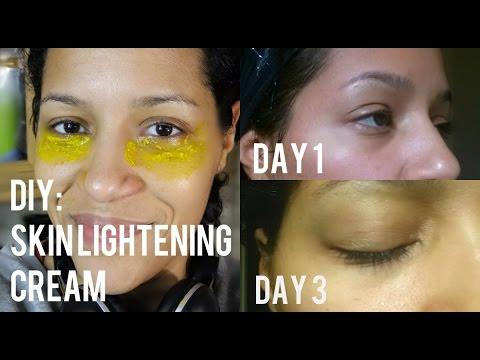 DIY: Natural Skin Lightening Cream to Get Rid of Dark ...