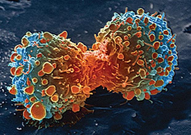 Il momento della divisione cellulare durante la creazione del cancro (fonte: United States: National Institutes of Health) © Ansa