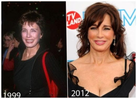Anne Archer Plastic Surgery Before And After Photos