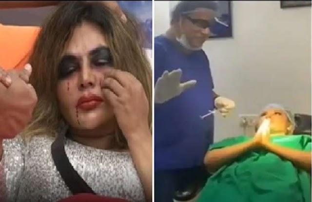 Bigg Boss में लड़ाई के दौरान टूटी थी राखी सावंत की नाक, एक्ट्रेस ने शेयर किया सर्जरी का दर्दनाक Video