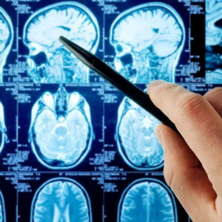 Depression damages parts of the brain, research concludes ...