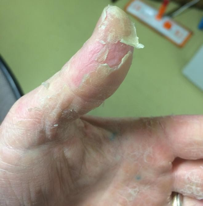 how to get rid of peeling skin on hands